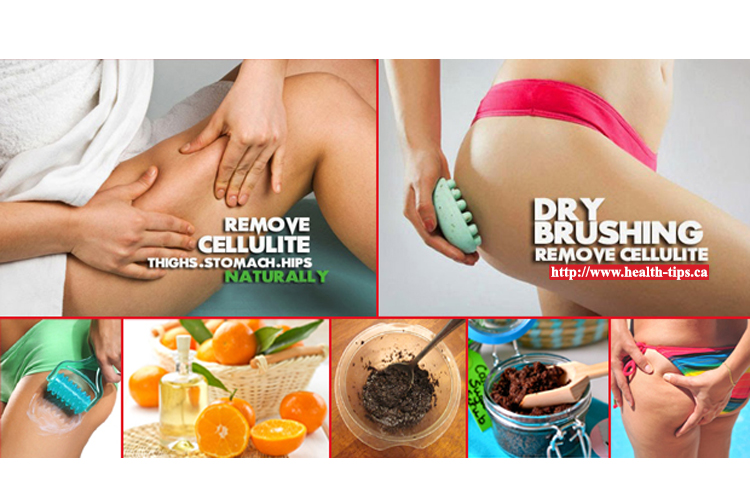 Can Exercise Get Rid Of Cellulite Naturally