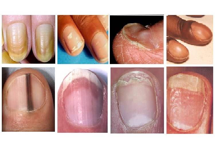 What your nails say about your health? | Health Tips